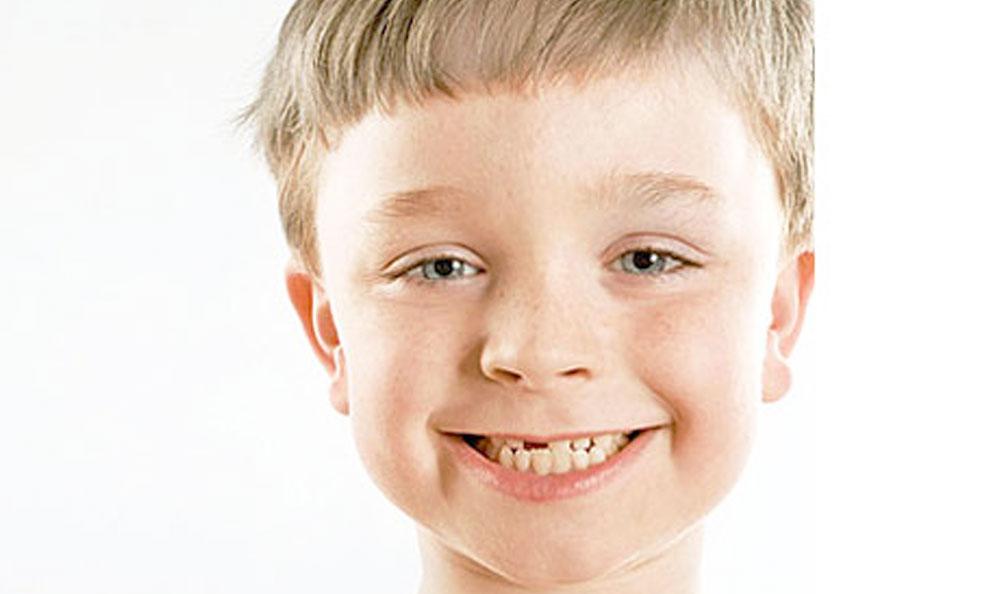 Blanqueamiento dental como blanquear dientesClub Ratoncito Perez
