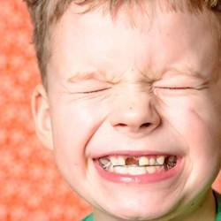 bruxismo infantil apretar los dientes club ratoncito perez