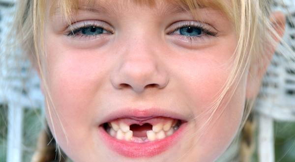 secretos sobre tus dientes