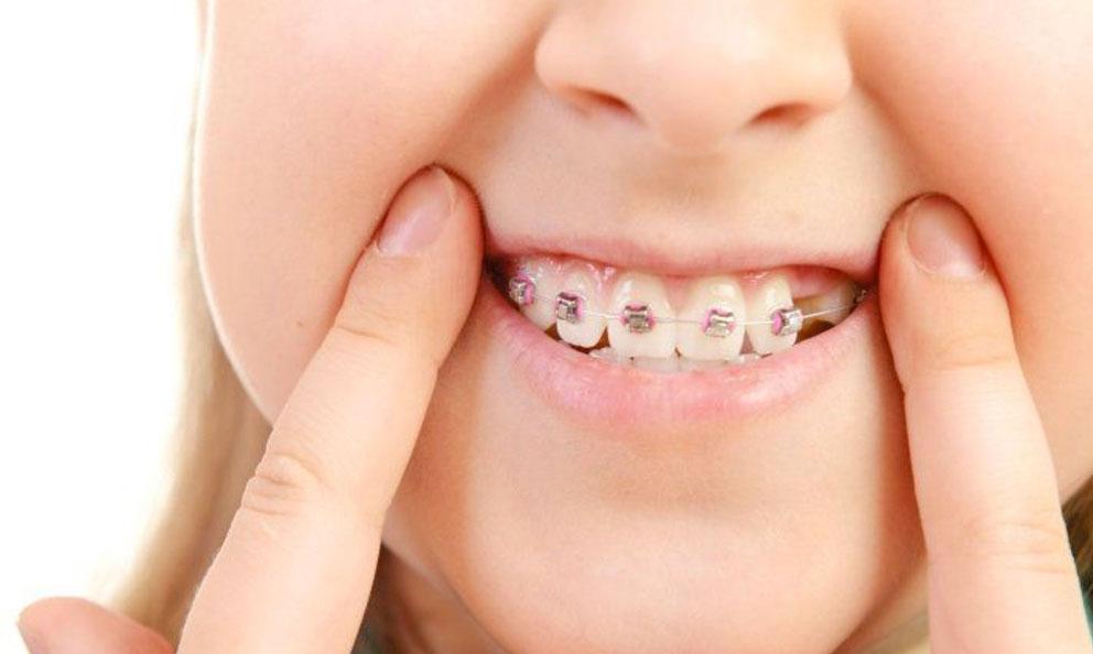 Ortodoncia y braquets o brackets en niños