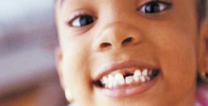 ¿A qué edad se caen los dientes?